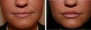 before and after dermal lip filler