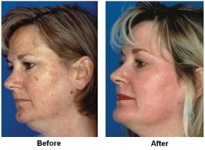 Obagi peel from elegance clinic