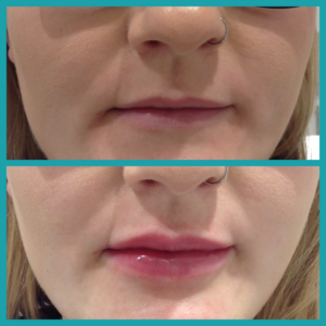 Before and after a little lip filler