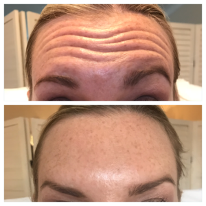 before and after botox forehead