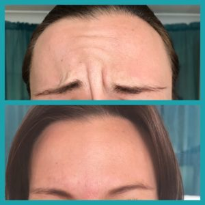 before and after botox frown area